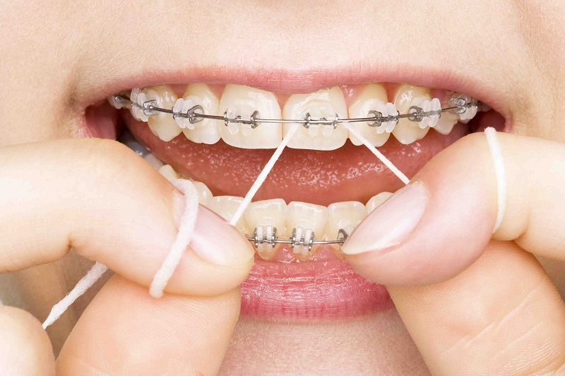 Precisely What Are Veneers Information And Advice